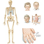 Clinical Presentation of Rheumatoid Arthritis