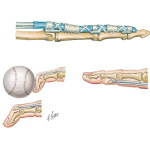 Flexor Tendon Anatomy and Injuries