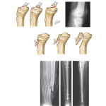 Fracture of Tibial Tubercle, Tibial Spine, and Tibial Shaft