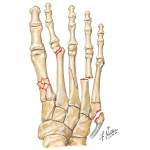 Injury to Metatarsals