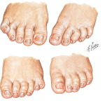 Illustration of Polydactyly, Syndactyly, Congenital Curly Toe, and Overlapping Fifth Toe from the Netter Collection