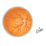 Ophthalmoscopic View of the Right Retina