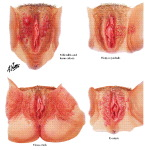Illustration of Vulvar Lesions from the Netter Collection