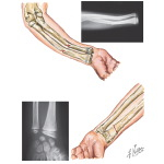 Fracture of the Forearm