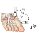 Ankle Arthrocentesis