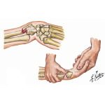 Acute Pediatric Wrist Fractures: Clinical Prediction Rule