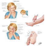 Illustration of Major Adverse Effects of Combination Oral Contraceptives from the Netter Collection