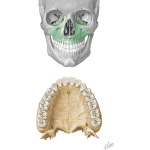 Bones of the Skull: Maxilla