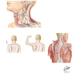 Lesions Affecting the Spinal Accessory Nerve