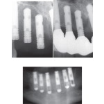 Surgical Procedures: Maxillary Implants