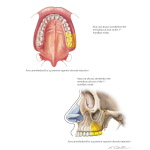 Illustration of Maxillary Injections: Posterior Superior Alveolar Nerve Block from the Netter Collection