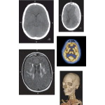 Brain and Spine Imaging