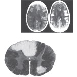 Acute Disseminated Encephalomyelitis (ADEM) and Multiple Sclerosis: Central Nervous System Pathology