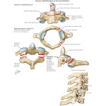 Fracture And Dislocation Of Cervical Vertebrae Trauma