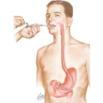 Gastroscopic Diagnosis of Malignant Disease