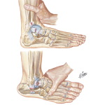 Anterior Drawer Sign of Ankle for Test of Talofibular Ligaments
