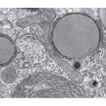 Electron Micrograph of Part of a Hepatocyte Showing Sagittal and Cross-Sectional Smooth Endoplasmic Reticulum