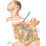 Radical Neck Dissection