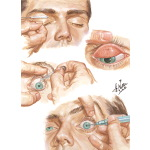 Removal of Foreign Body In the Eye