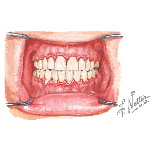 Marginal Gingivitis