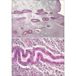 Light Micrographs of the Endometrium During the Early Follicular Phase at Low Magnification (Above) and Late Follicular Phase at Higher Magnification (Below)