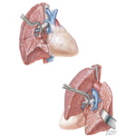 Pneumonectomy and Lobectomy