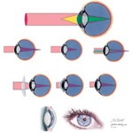 Myopia and Other Refractive Errors