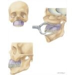 Facial Trauma: Repair of Le Fort I Fracture
