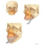 Facial Trauma: Repair of Le Fort II Pyramidal Fracture
