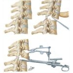 Dislocation of Cervical Spine With Locked Facets