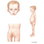 Illustration of Child Abuse: Signs of Neglect from the Netter Collection