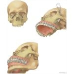 Illustration of Facial Trauma: Repair of Le Fort III Fracture (Craniofacial Dysjunction) from the Netter Collection