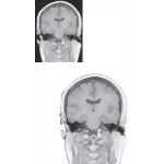 Coronal Sections Through the Forebrain: Level 6 - Mammillothalamic Tract and Substantia Nigra, Rostral Hippocampus