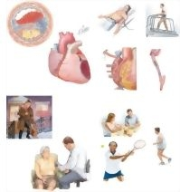 Illustration of Managing Your Coronary Artery Disease from the Netter Collection