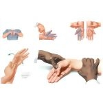 Physical Examination of the Forearm