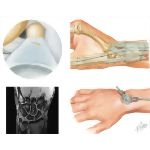 Disorders of the Forearm