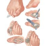 Operations for Hallux Valgus