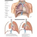 Illustration of Pathogenesis of Pneumothorax; Pathophysiology of Open Pneumothorax from the Netter Collection