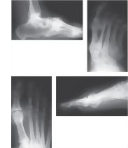 Radiographs Depicting Arthritis In Various Sites of the Foot