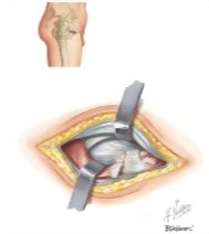 Surgical Approaches: Anterolateral (Watson-Jones) Approach to Hip