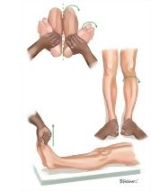 Leg and Knee: Physical Examination