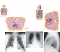 Radiologic Examination of the Lungs