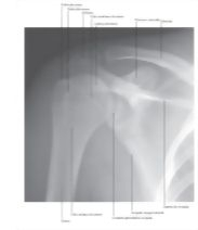 Illustration of Ombro: Radiografia Anteroposterior from the Netter Collection