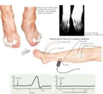 NeuroPathy on Pinterest   Nervous System, Radiculopathy ...  Hereditary Sensory And Autonomic Neuropathy