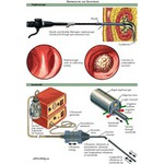 Illustration of Percutaneous Nephrolithotomy: Nephroscope and Sonotrode from the Netter Collection