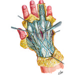 Illustration of Wrist and Hand: Superficial Dorsal Dissection from the Netter Collection