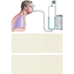 Illustration of Forced Expiratory Vital Capacity Maneuver from the Netter Collection