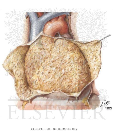 Rheumatic Heart Disease I