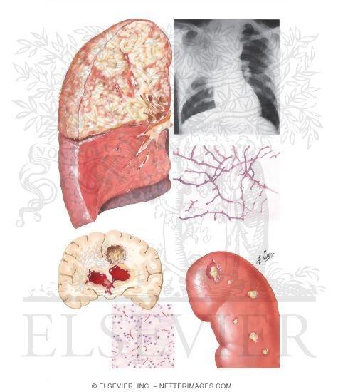 Nocardiosis - Wikipedia