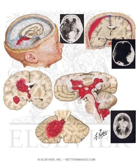 Intracranial Hemorrhage inIntracranial Hemorrhage
